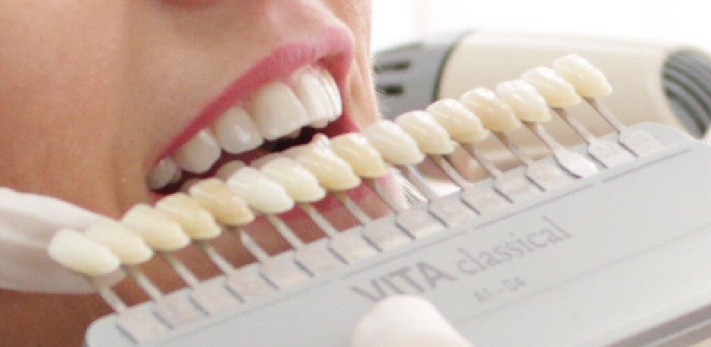 Ästethische Funktionelle Zahnheilkunde